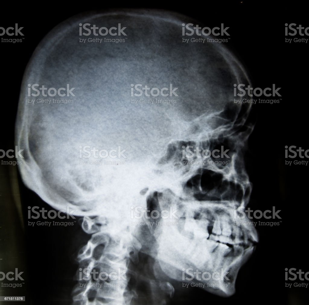 Film Xray Skull Lateral Show Normal Humans Skull And Cervical Spine ...