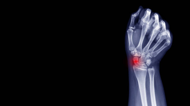 Film X-ray wrist radiograph show carpal bone broken (scaphoid fracture) from falling. Highlight on broken site and painful area.  Medical imaging and orthopedic technology concept stock photo