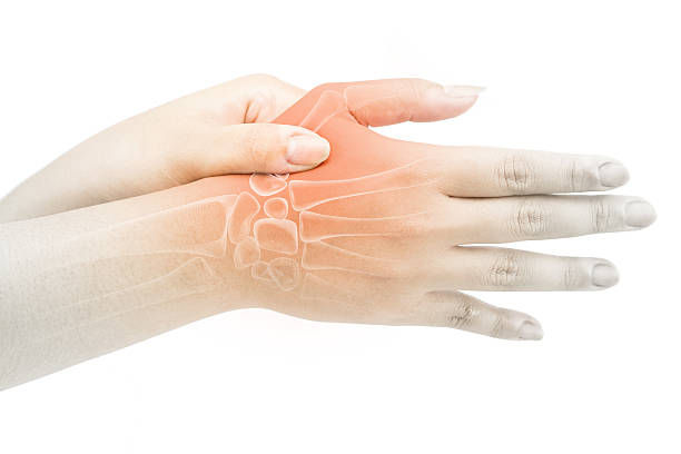 finger bone pain stock photo