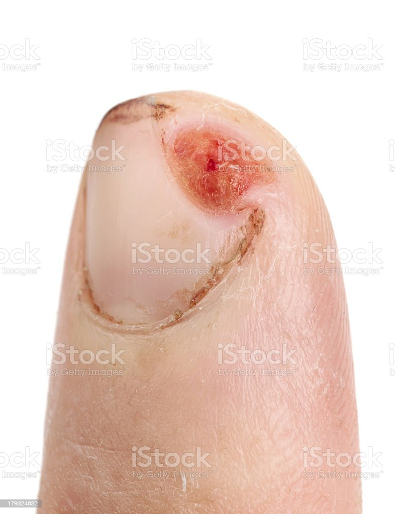 Finger cut with knife, not imitated, 5th day after injury royalty-free stock photo