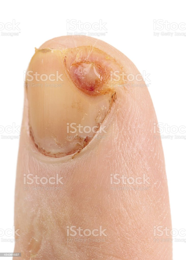 Finger Schnitt mit Messer, nicht kopiert, zehn Tage nach unjury - Lizenzfrei Blut Stock-Foto