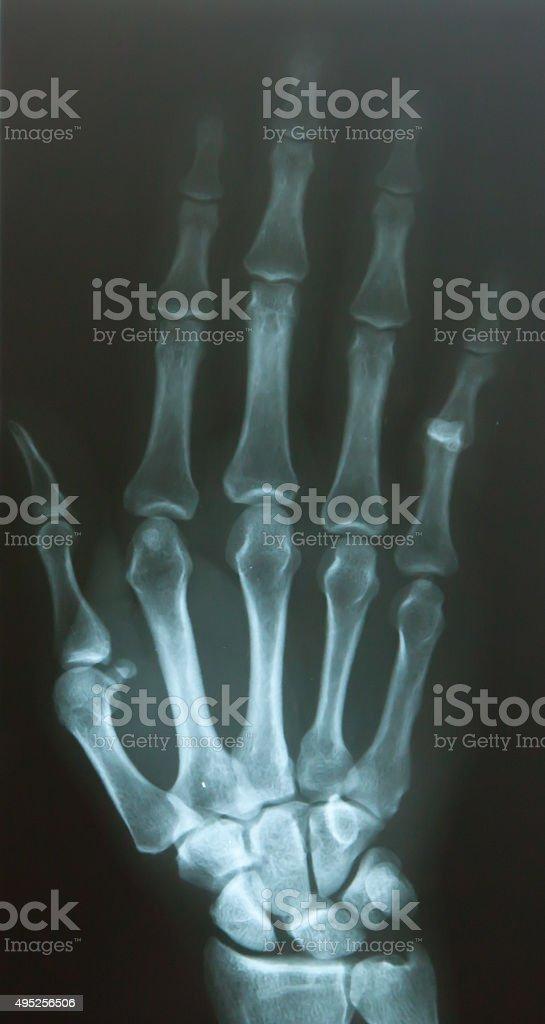 Finger dislocate stock photo