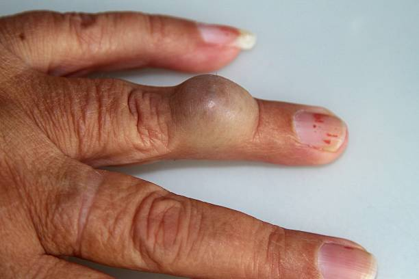 finger lump on hand - cyst stock pictures, royalty-free photos & images