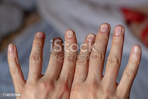 Finger of seniors who have problems trigger Twisted fingers. The hand of a man with crooked hunched fingers. joint disease.