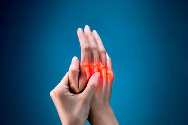finger pain - medical x-ray - artrite foto e immagini stock