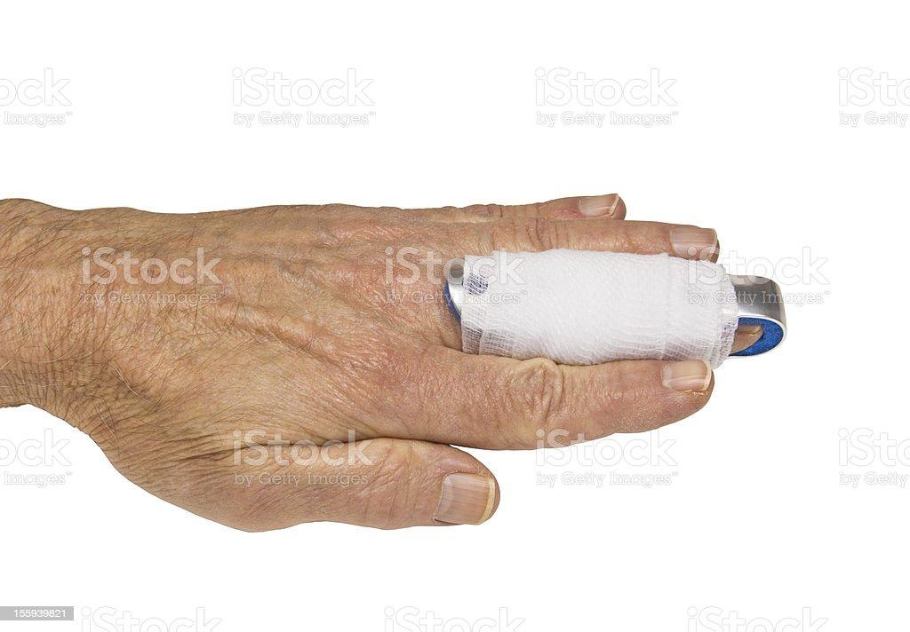 finger splint stock photo