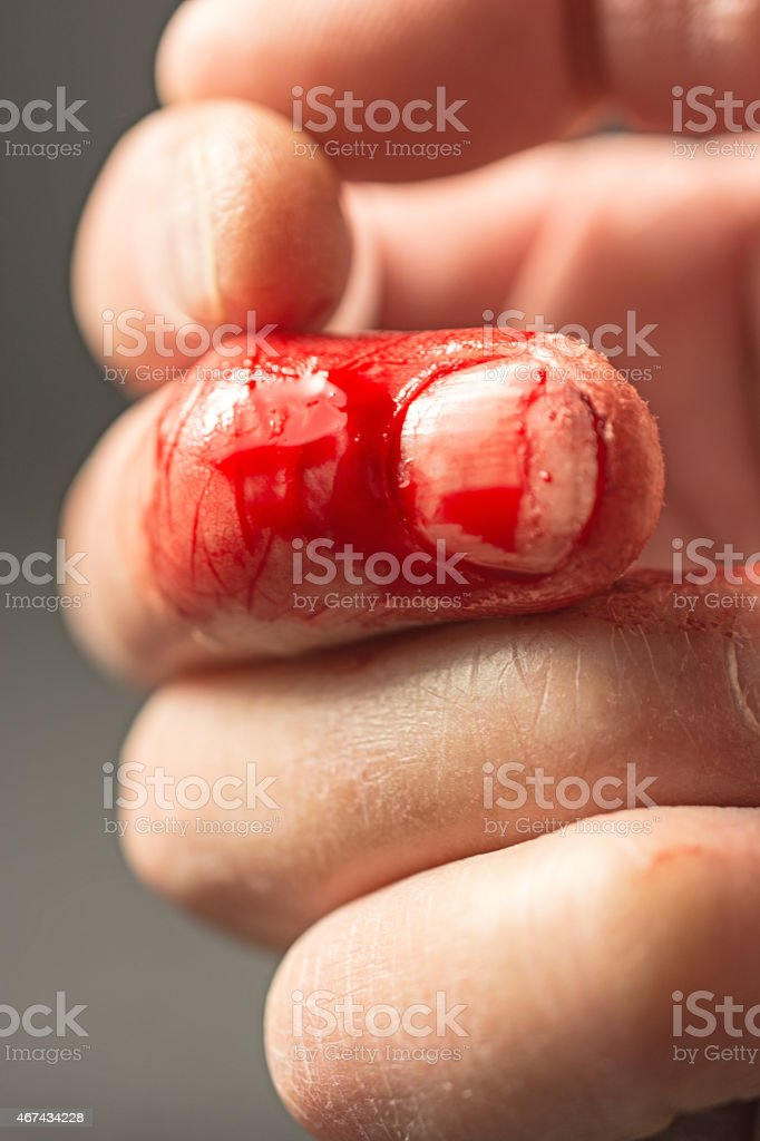 Finger with a frsh cut still bleeding. Black background stock photo