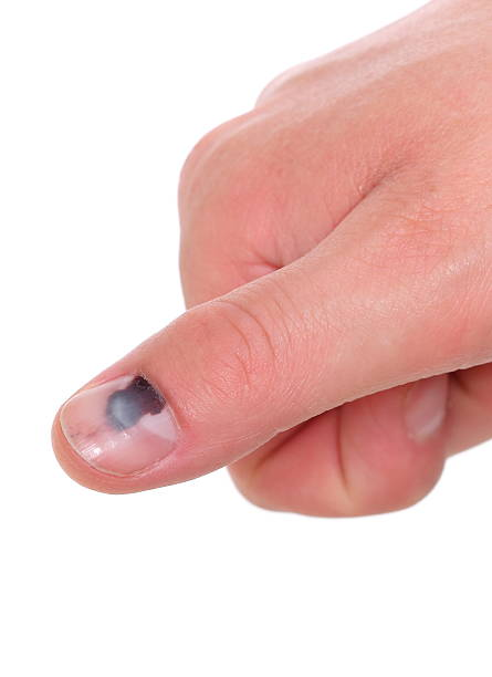 Finger With Black Bruised Nail On White Background Stock Photo