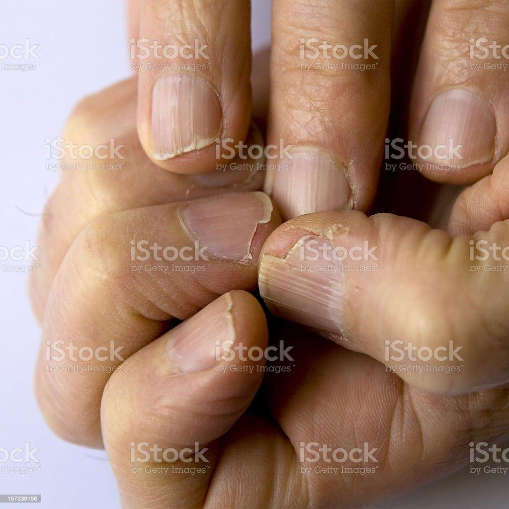 Fingernail disaster zone royalty-free stock photo