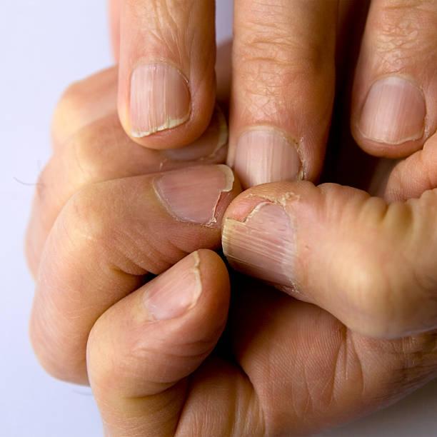 Fingernail disaster zone stock photo