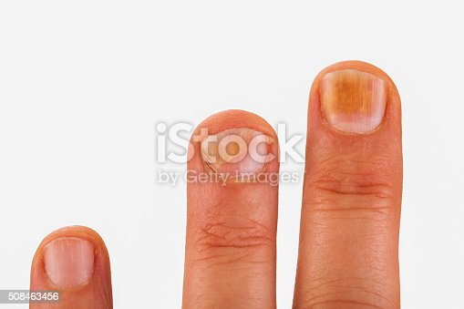 istock Fingernails with nail fungus 508463456