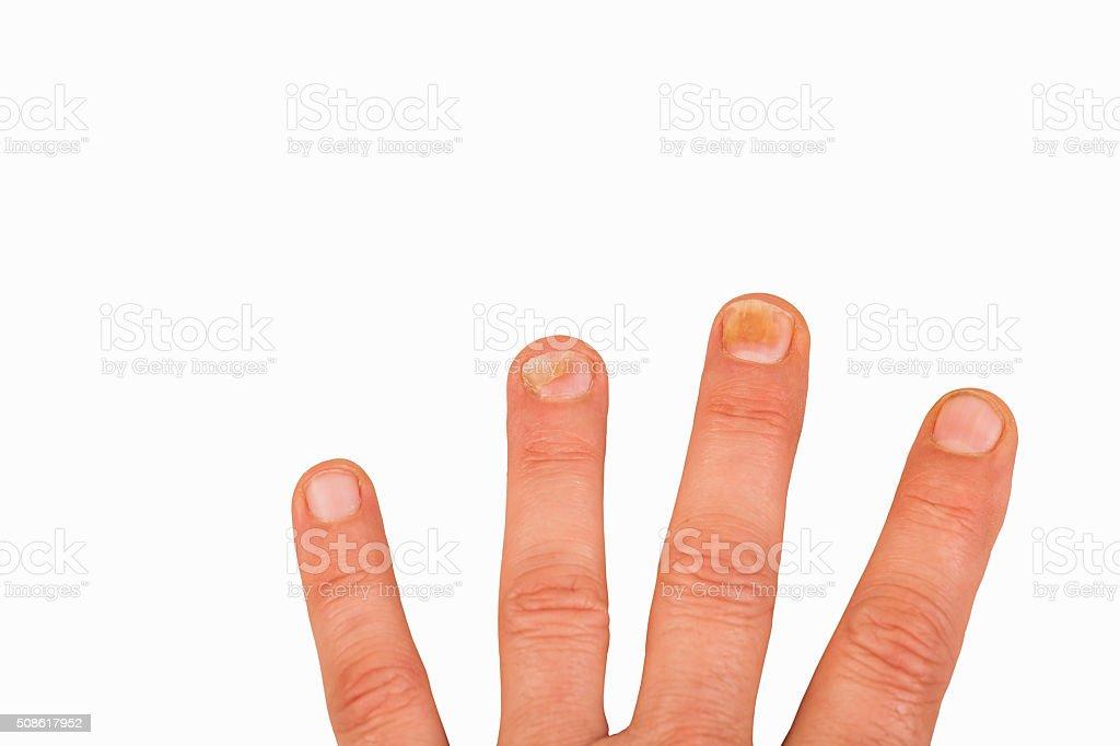 Fingernagel Mit Nagelpilz Stock Fotografie Und Mehr Bilder Von Alt
