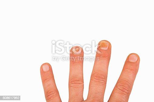 186825340 istock photo Fingernails with nail fungus 508617952
