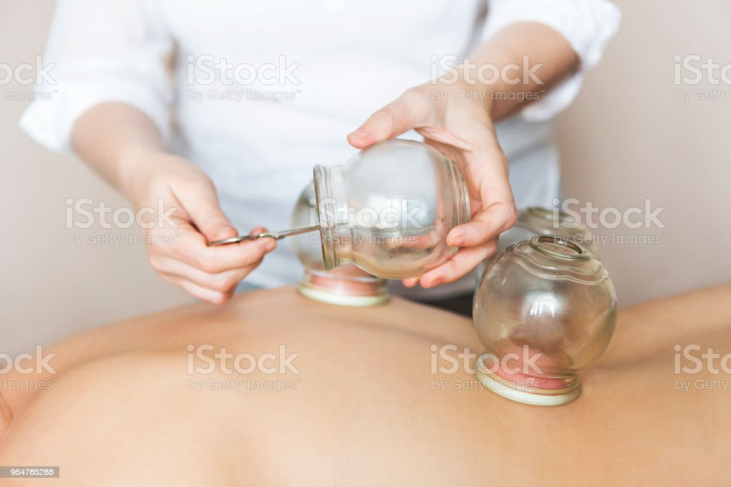 Fire cupping cups on back of female patient in Acupuncture therapy stock photo