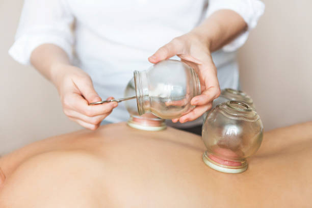fire cupping cups on back of female patient in acupuncture therapy - cupping therapy stock photos and pictures