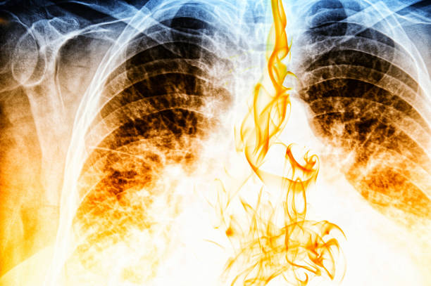 fire visible on chest x-ray image - respiratory tract stock photos and pictures