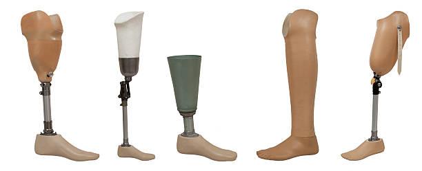 five prosthetic leg isolated on a white background - protesutrustning bildbanksfoton och bilder