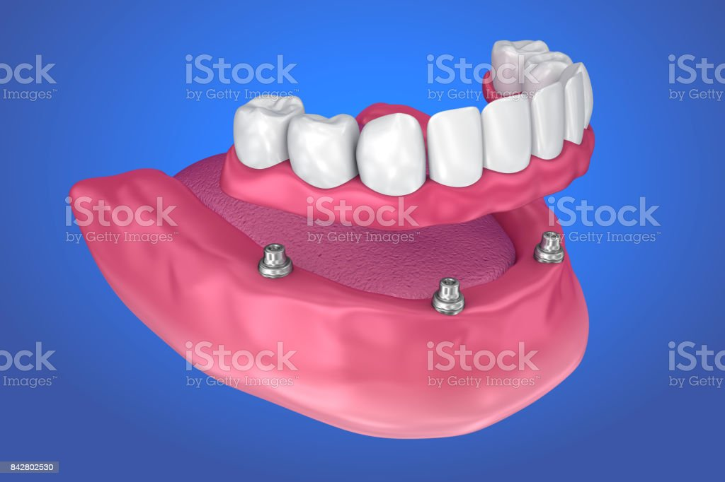 Fixed bridge on implants. Medically accurate 3D illustration stock photo