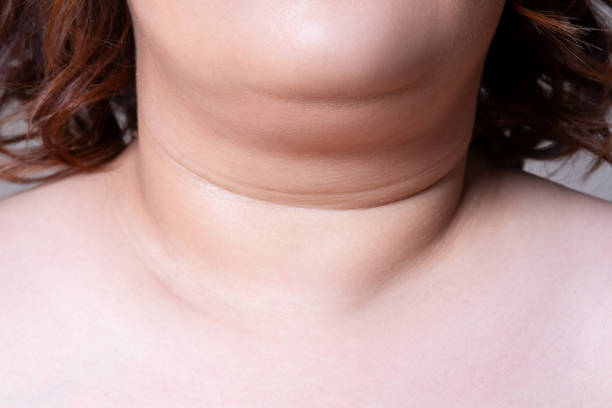 Flabby skin on the neck of an fat woman, female double chin on gray background stock photo
