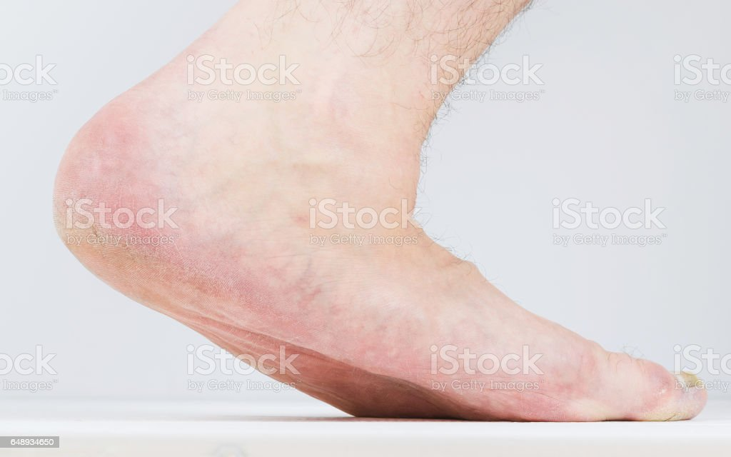 Flatfoot on the male foot with signs of fungal disease. stock photo
