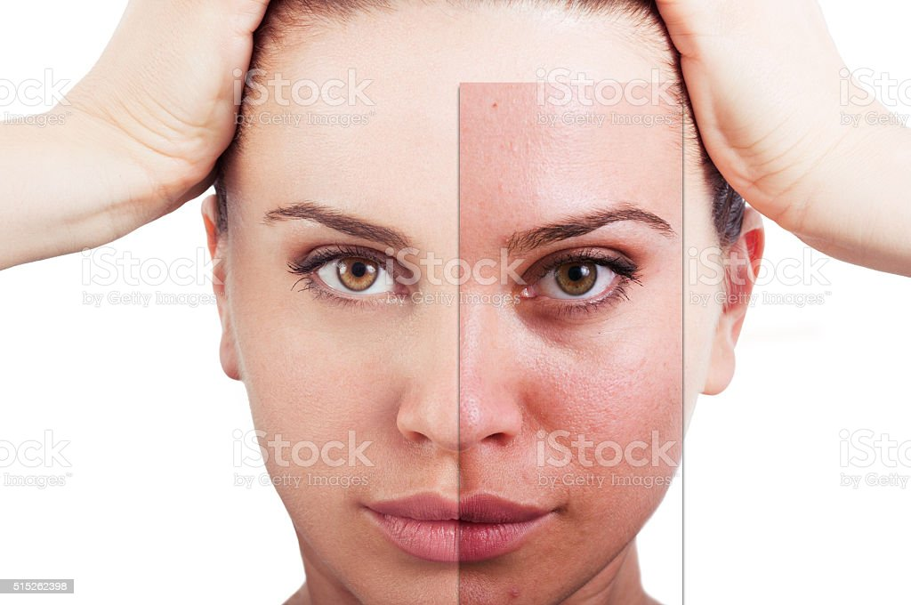 Flawless woman portrait before and after facial correction stock photo