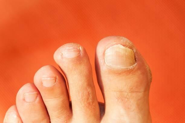 mouches sur vos doigts. gros coup de doigt ongle mauvais. soins du pied des ongles - soins des pieds. - verrue pied photos et images de collection
