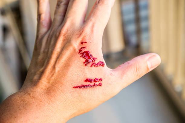 焦點狗咬傷和手上的血。感染和狂犬病的概念。 - 咬 個照片及圖片檔