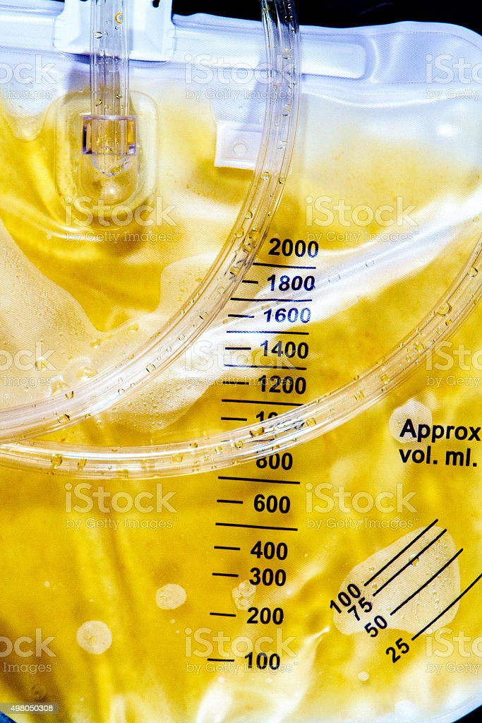 Foley Bag and Volume Indication stock photo