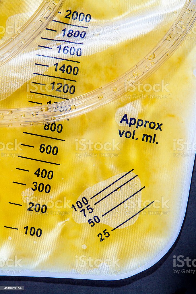 Foley Bag Measurement stock photo