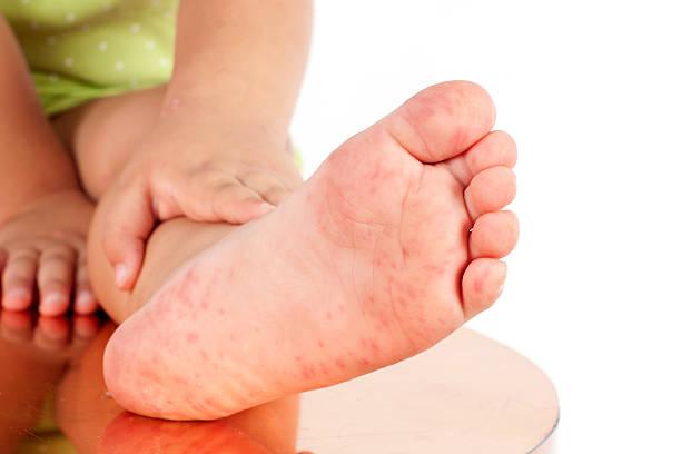 foliculitis por niño de pie - enfermedades de los pies fotografías e imágenes de stock