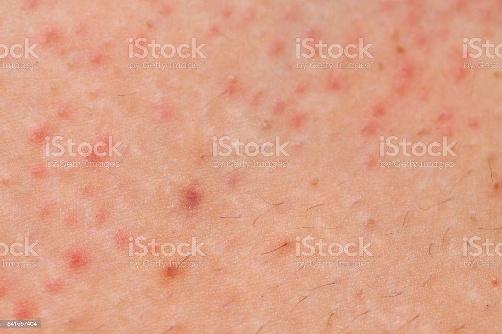 Folliculitis on female skin stock photo