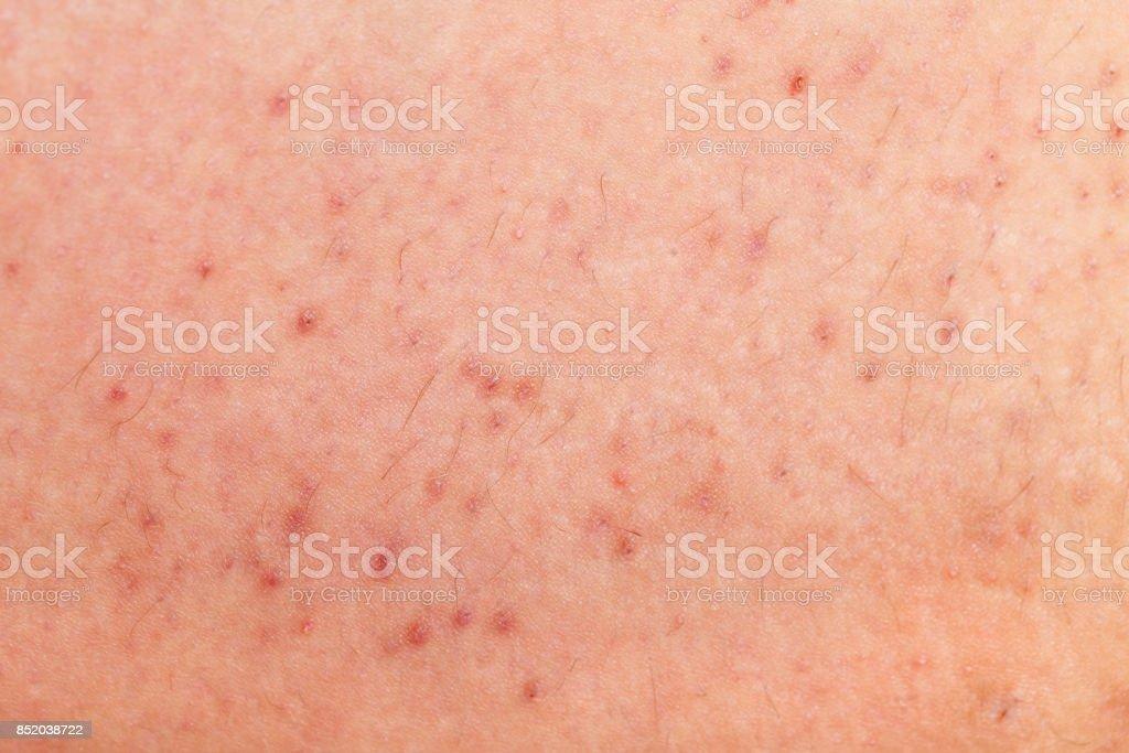 Folliculitis on human skin stock photo