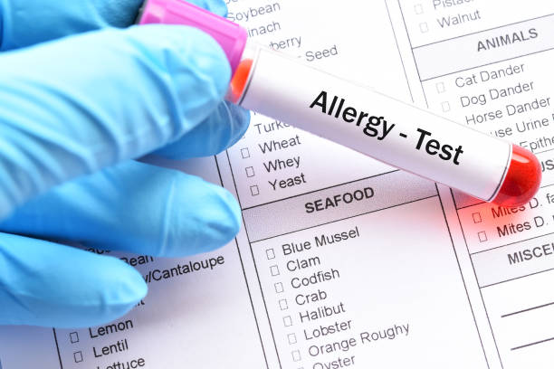 food allergy test - food allergies stock photos and pictures