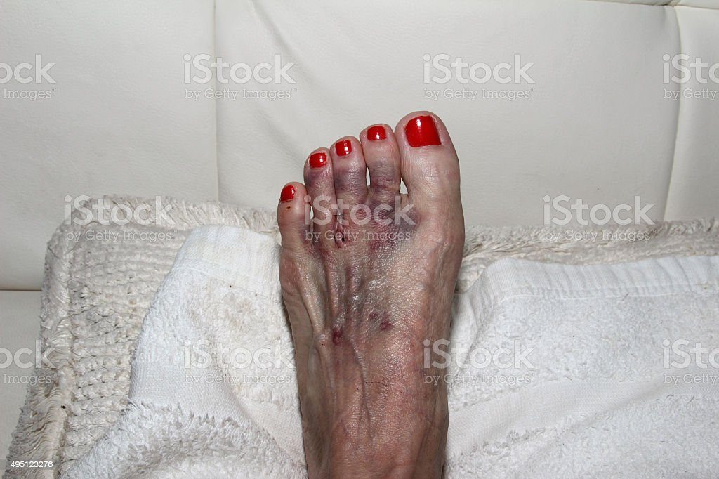 Foot after Morton's neuroma surgery stock photo