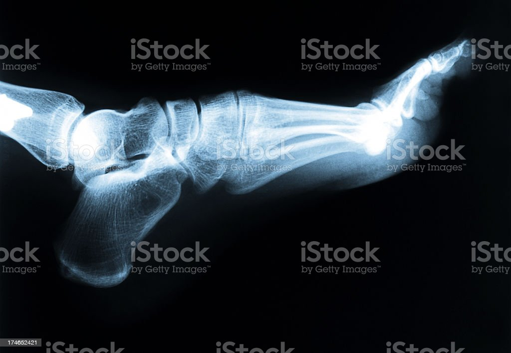 Foot  & Ankle X-Ray stock photo