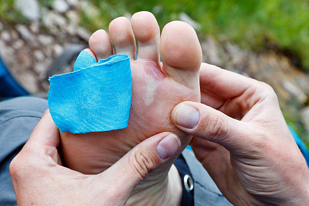 Foot Blister stock photo