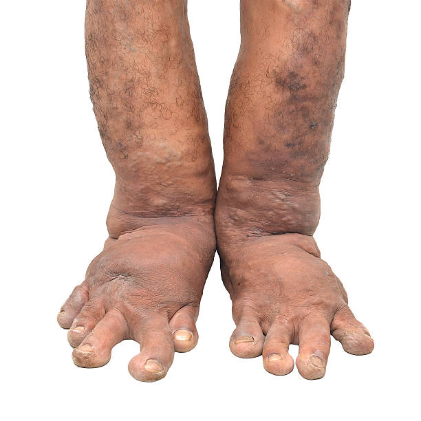foot disorders on white background - old man feet stock photos and pictures