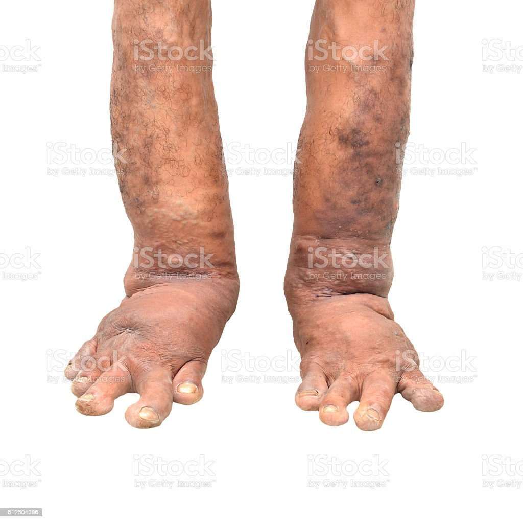 Foot disorders on white background stock photo