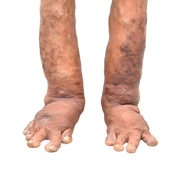 foot disorders on white background - monster stock-fotos und bilder