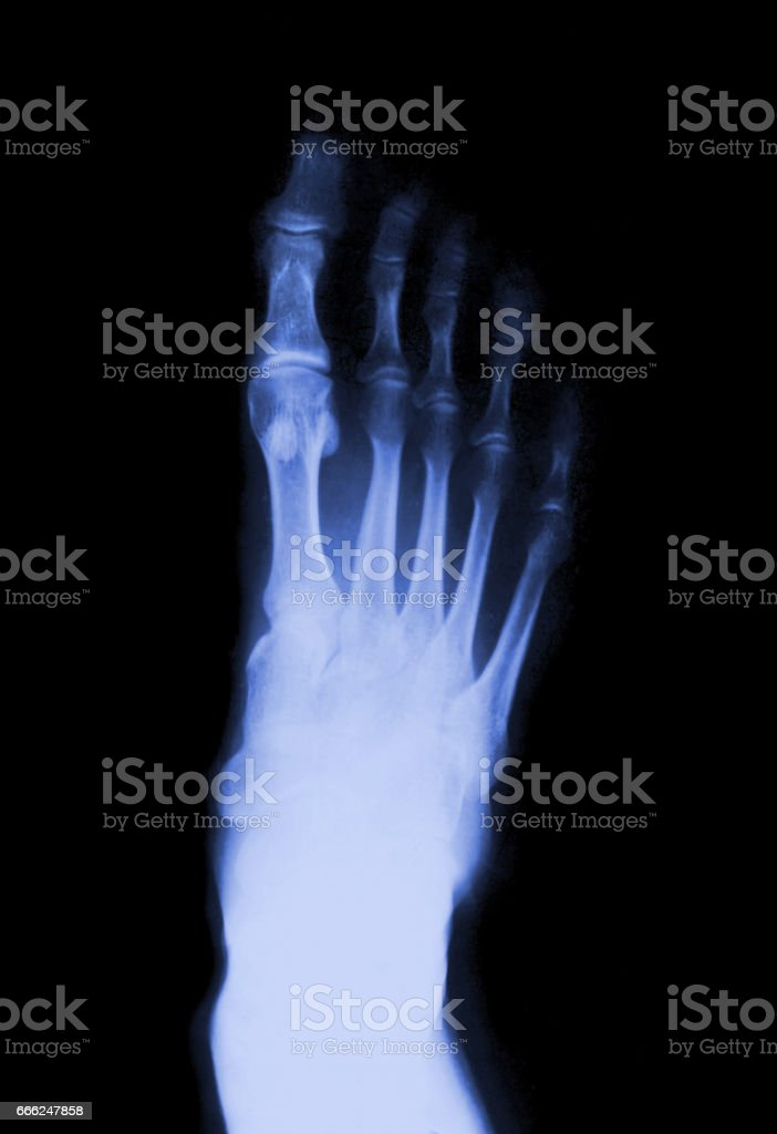 Foot fingers stock photo