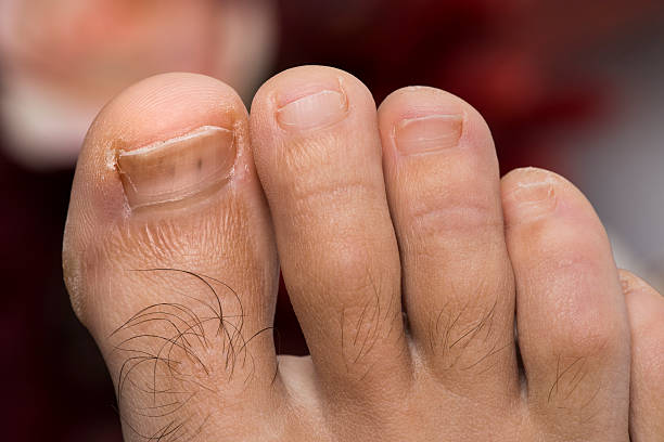 foot fungus stock photo