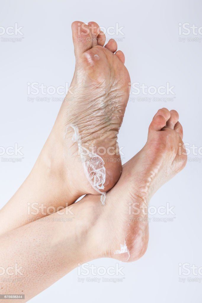 Foot Fungus With Cracked Heel Rear View Stock Photo Download Image Now Istock