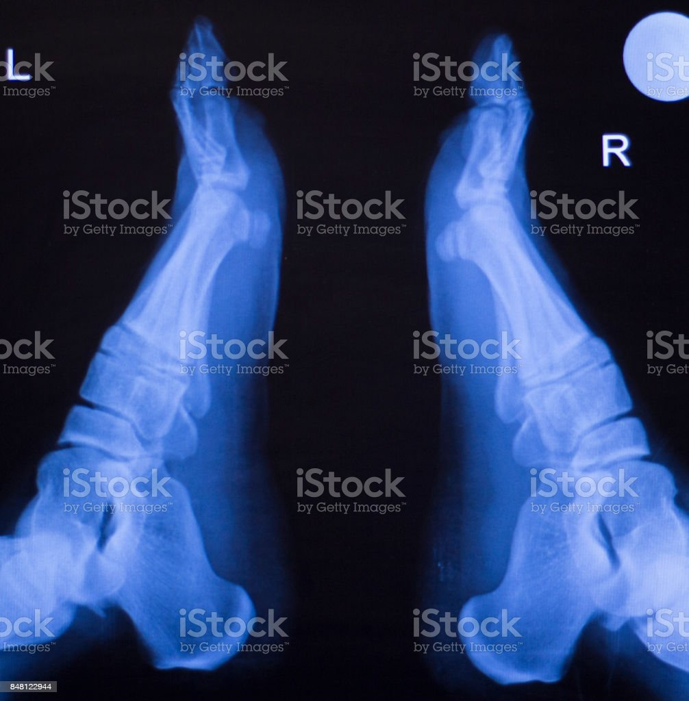 Foot, heel and ankle xray traumatology and orthopedics test medical scan used to diagnose sports injuries. stock photo