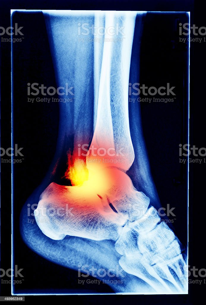 foot inflammation stock photo