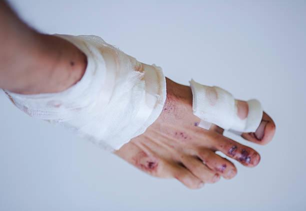 foot injury stock photo