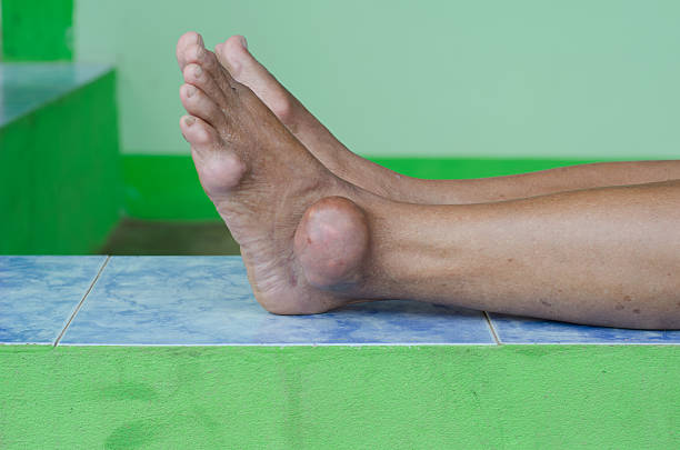 foot of gout patient foot of gout patient gout stock pictures, royalty-free photos & images