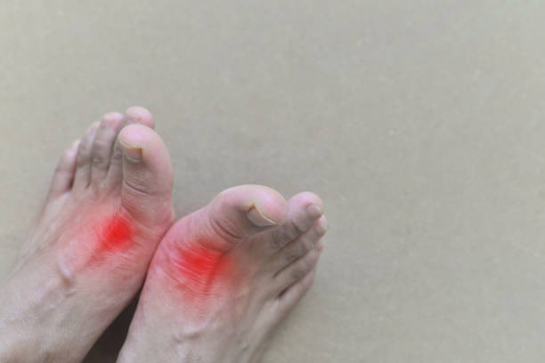 Foot of gout patient.Close up Painful and inflamed gout. Foot of gout patient.Close up Painful and inflamed gout. gout stock pictures, royalty-free photos & images
