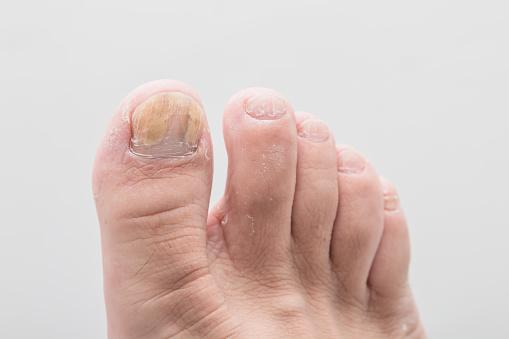 istock foot of nail fungus 1069043376