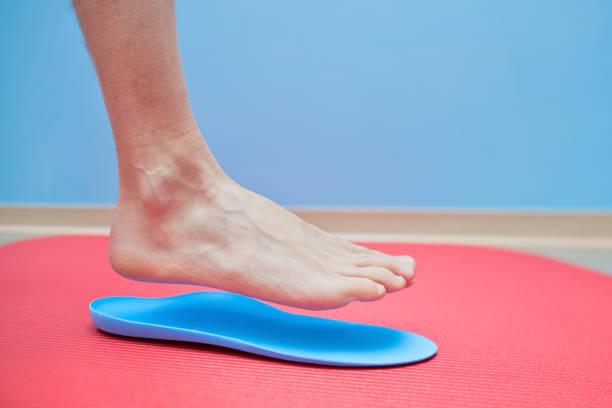 Pie en plantillas ortopédicas pie medical corrección - foto de stock