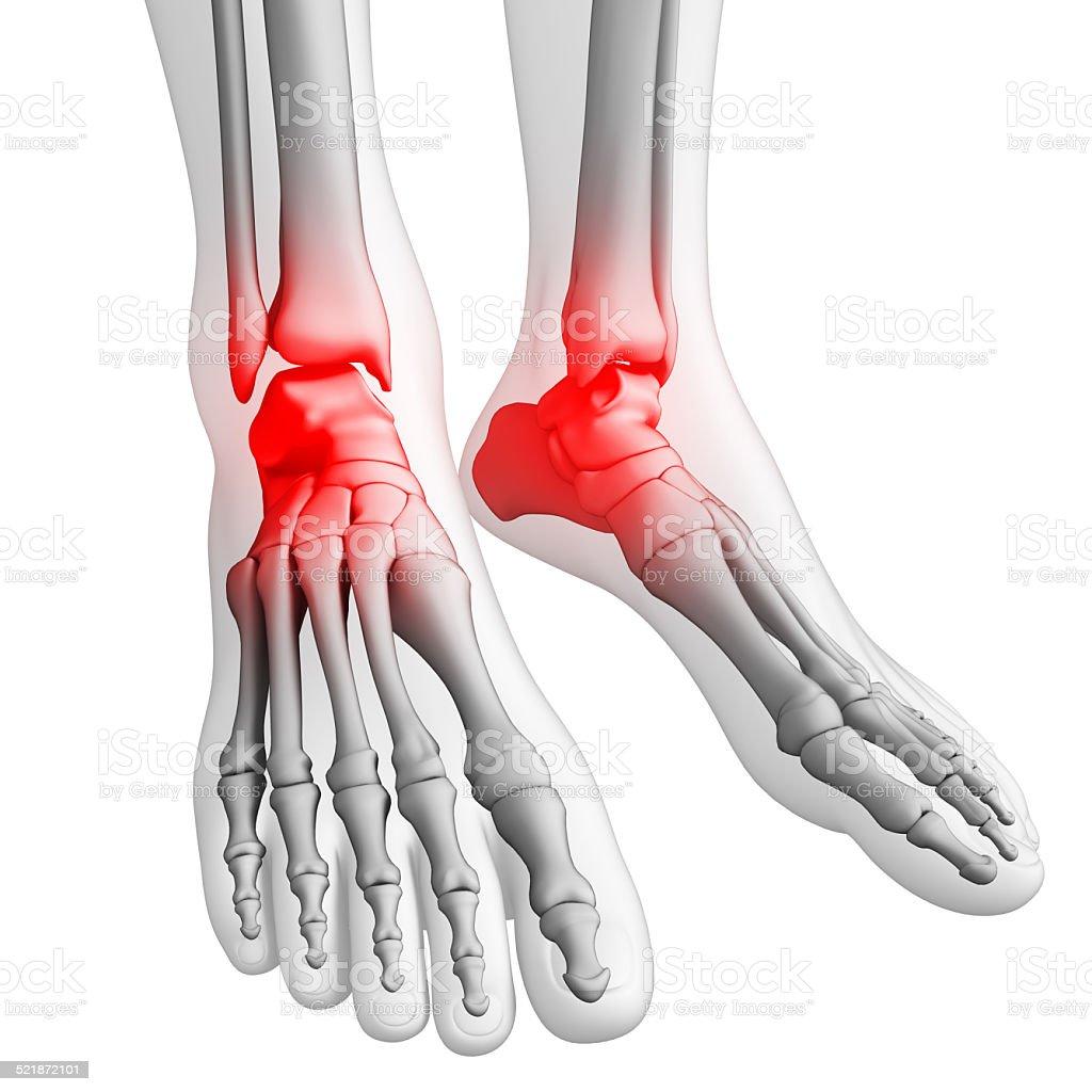 Foot Pain Artwork stock photo 521872101 | iStock
